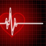 Heart Attack and Pradaxa